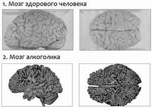 Відновлення роботи мозку
